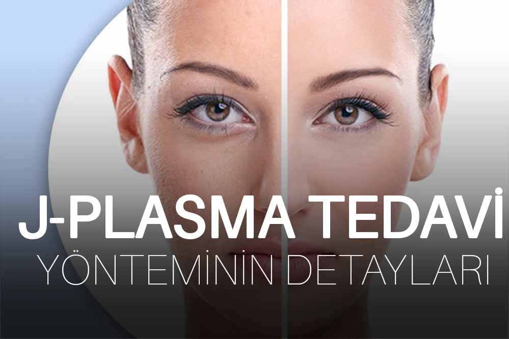 J-Plasma Tedavi Yönteminin Detayları