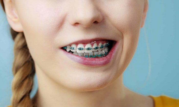 Doktorya Sayesinde Diş Teli Fiyatını Kendiniz Hesaplayabilirsiniz!.